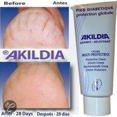 Akildia Creme Diabetes Voet Derma Beschermend