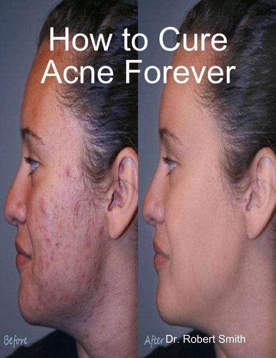 How to cure acne forever
