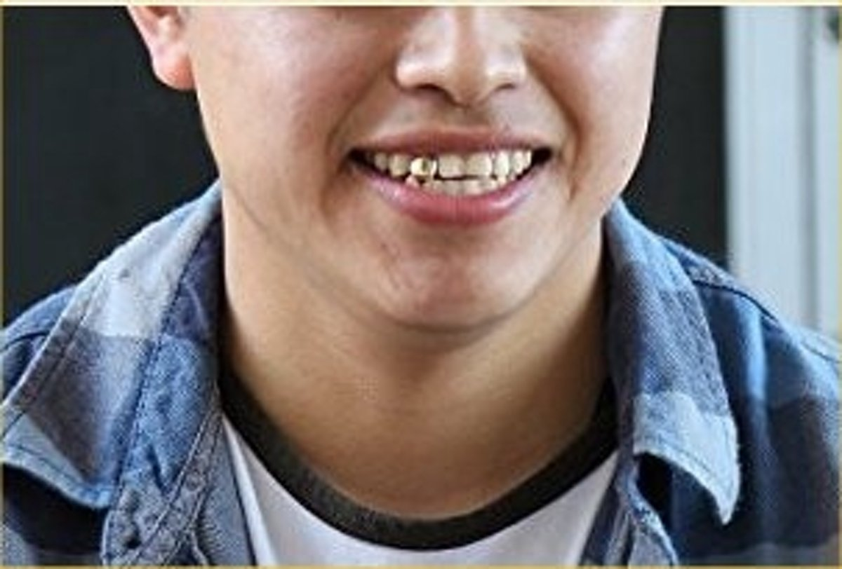 Betere bol.com   Gouden voortand - gouden tand - 10mm - zelf op maat te JY-39