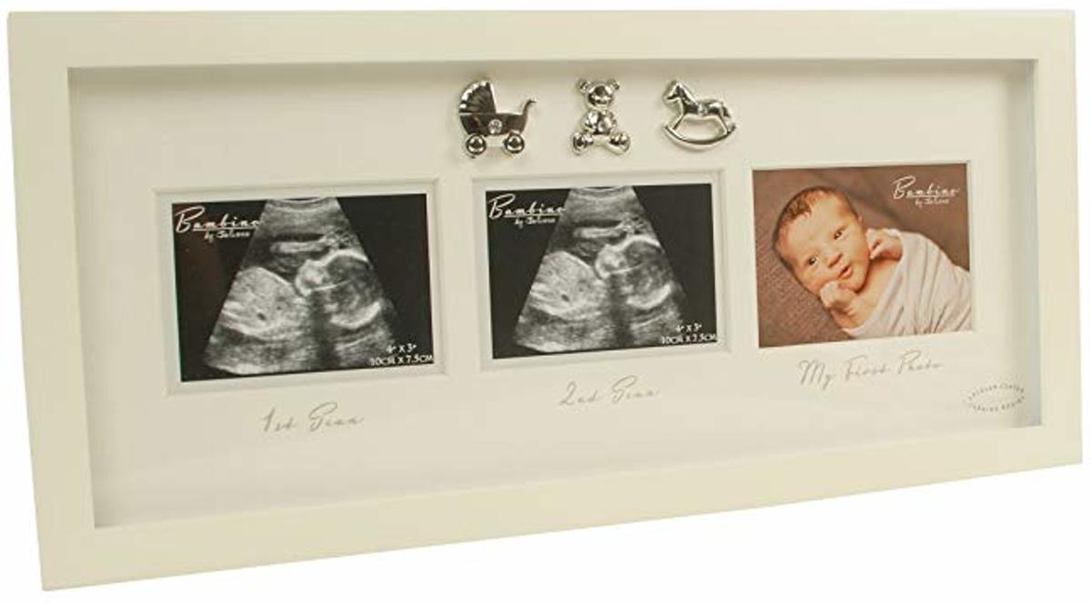 fotolijst echo baby kopen