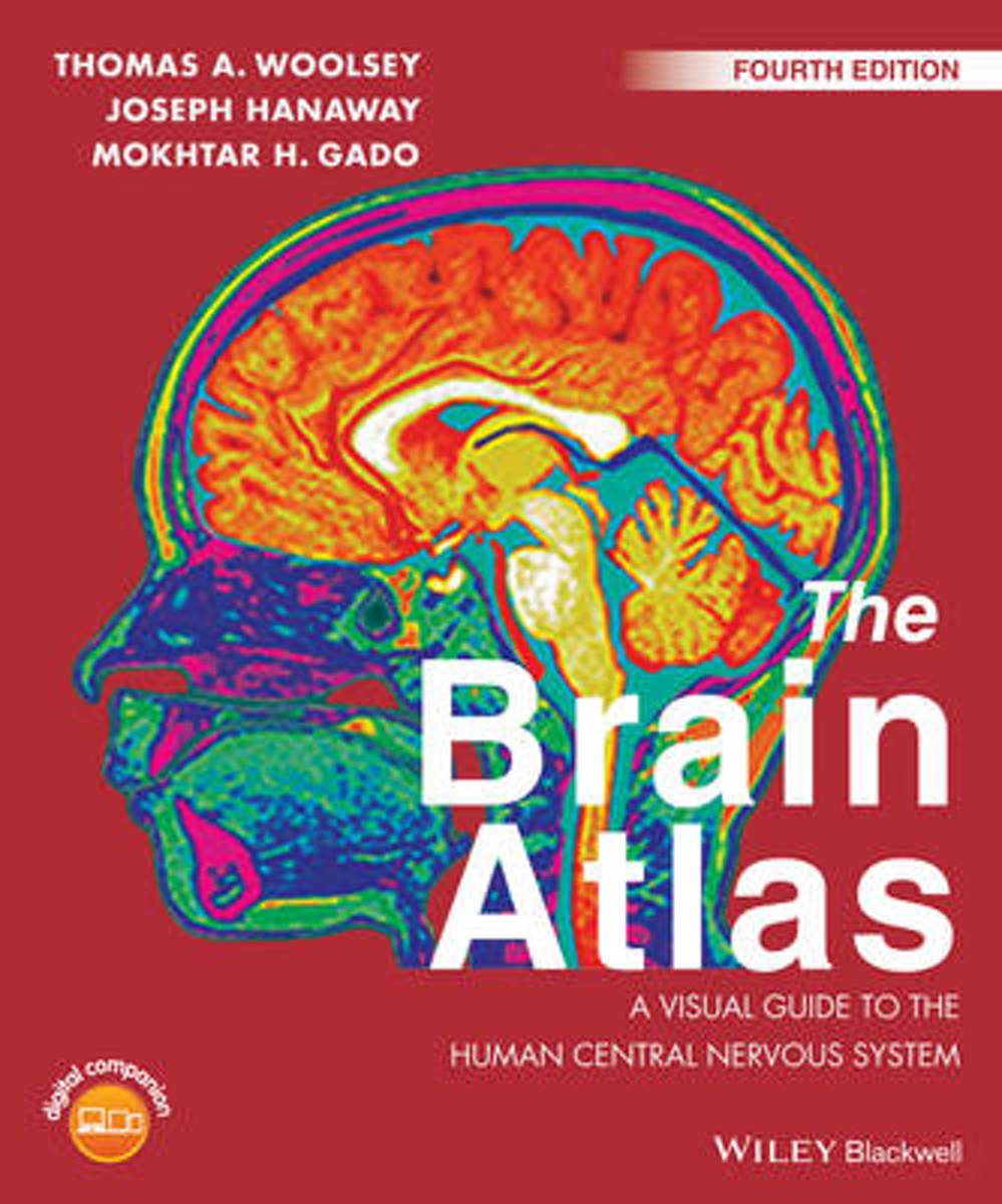 bol.com | The Brain Atlas, Thomas A. Woolsey | 9781118438770 | Boeken
