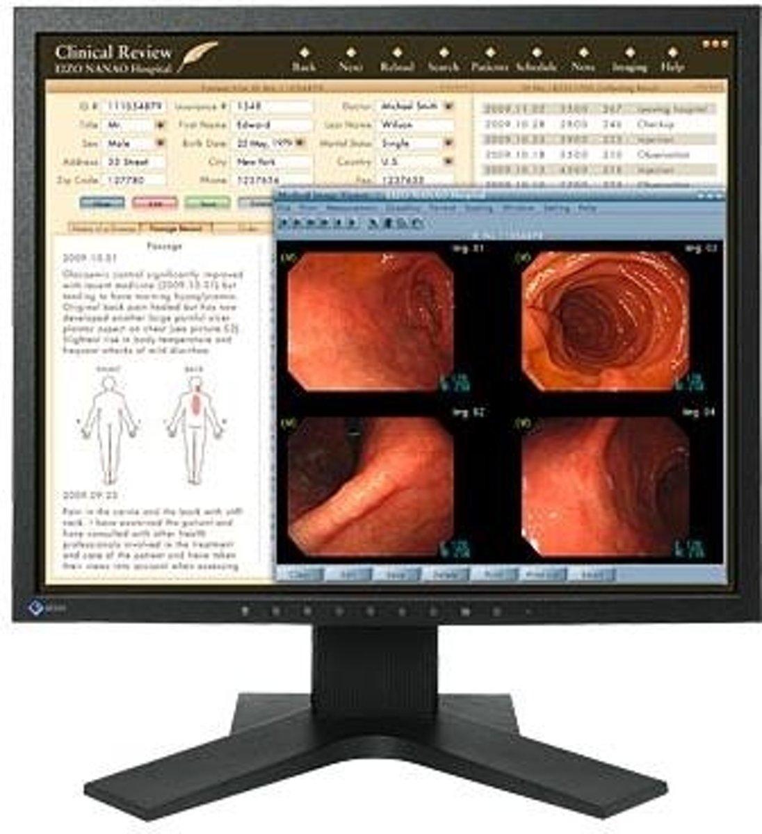 Eizo RadiForce MX191 - Monitor