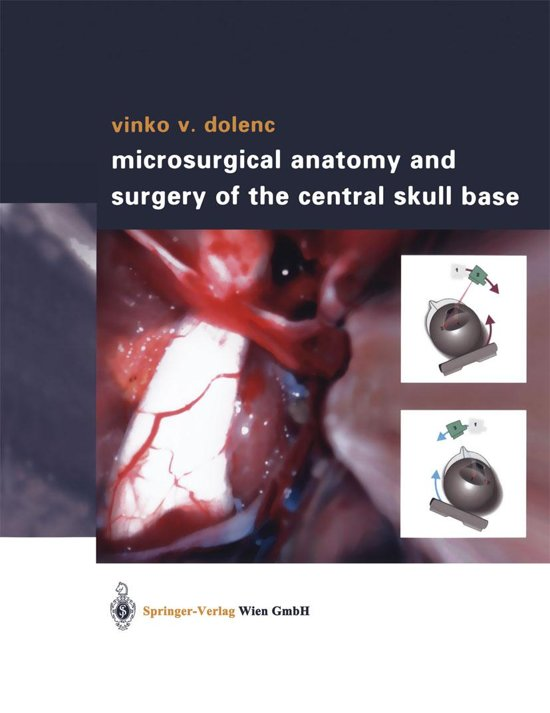 bol.com | Microsurgical Anatomy and Surgery of the Central Skull ...