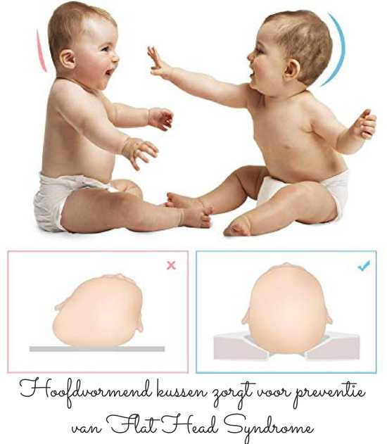 dr. Doedel Baby Hoofdkussen - Appel - Hoofdvormend kussen voor baby's van 0-6 Maanden - Memory Foam Hoofdkussen - Flat Head Syndrome preventie - Tegen afgeplat hoofd - Veilig slapen - Kraamcadeau