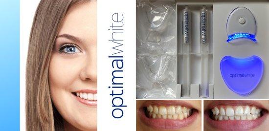 Optimal White - Tandenbleekset - Thuis Tanden Bleken - Witte tanden - Voldoet aan EU regelgeving - 100% Veilig Tanden Bleken - Best getest