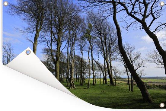 Hoge bomen op het platteland van het Engelse Nationaal park South Downs Tuinposter 120x80 cm - Tuindoek / Buitencanvas / Schilderijen voor buiten (tuin decoratie)