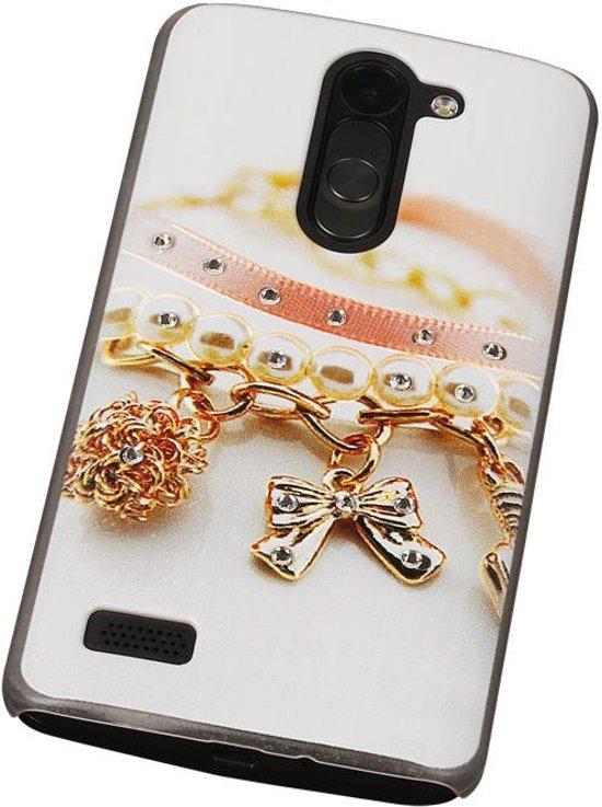3D Hardcase met Diamant L Bello D335 Armband - Back Cover Case Bumper Hoesje