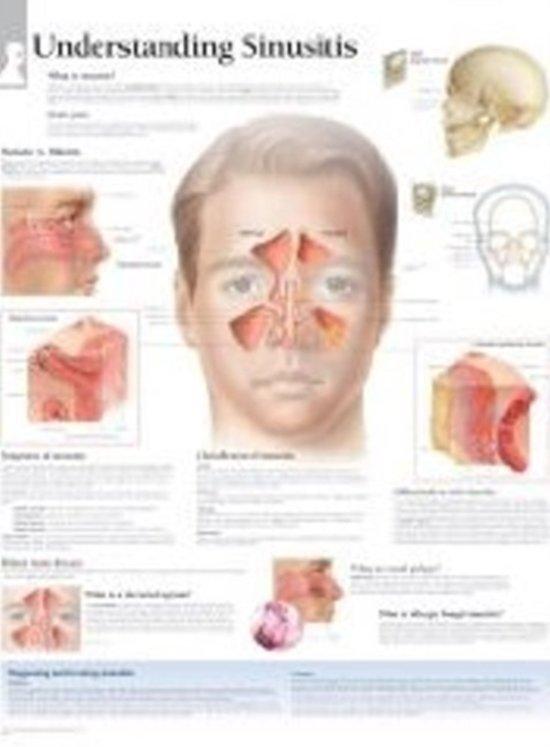 Understanding Sinusitis Paper Poster