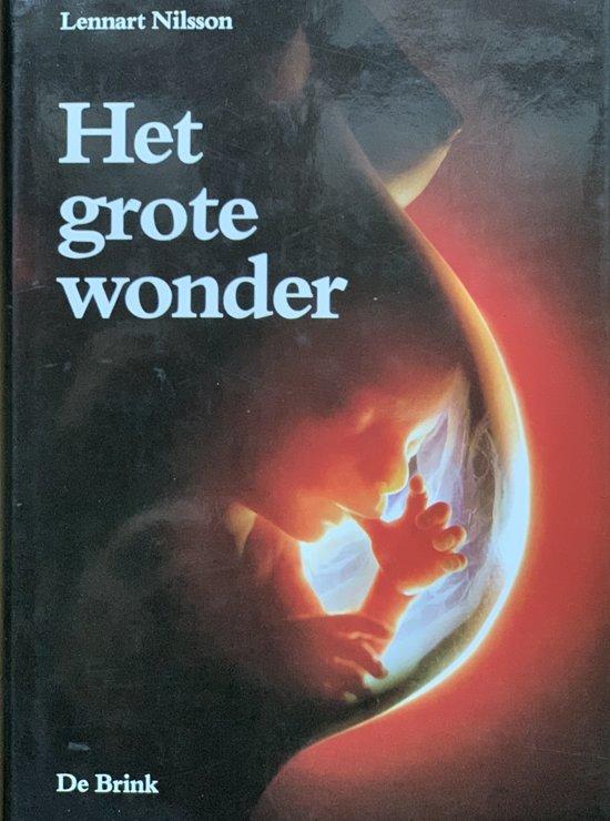 Het Grote Wonder