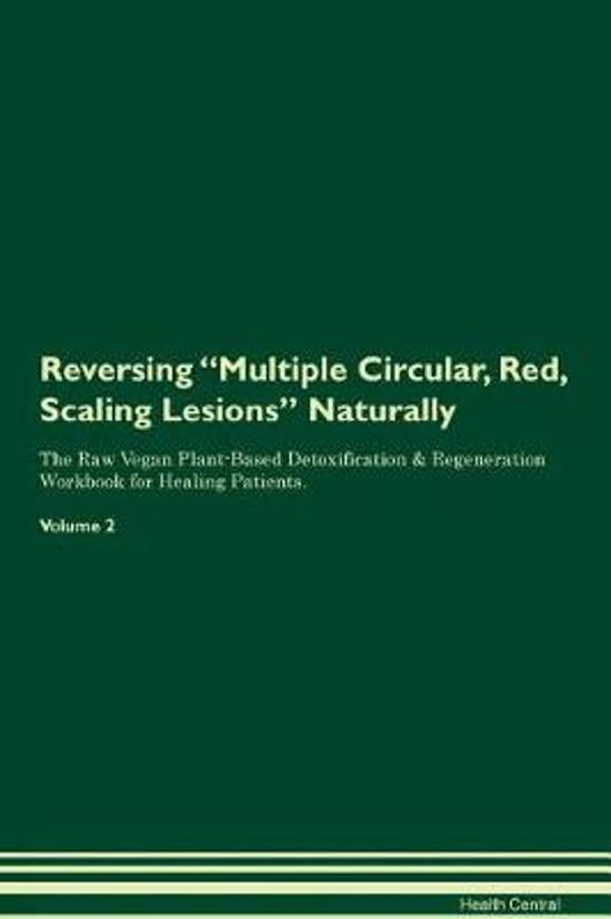 Reversing Multiple Circular, Red, Scaling Lesions Naturally the Raw Vegan Plant-Based Detoxification & Regeneration Workbook for Healing Patients. Volume 2