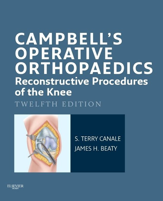 Campbell's Operative Orthopaedics: Reconstructive Procedures of the Knee E-Book