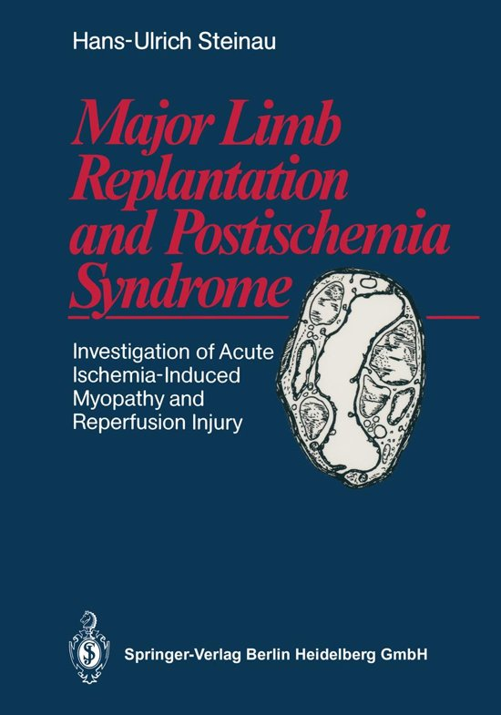 Major Limb Replantation and Postischemia Syndrome