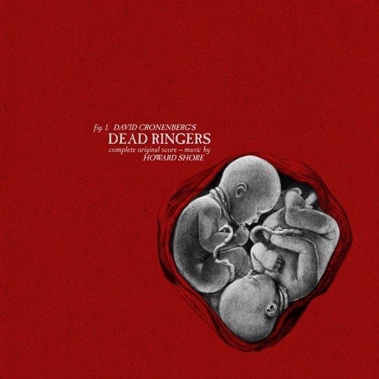 Dead Ringers O.S.T.