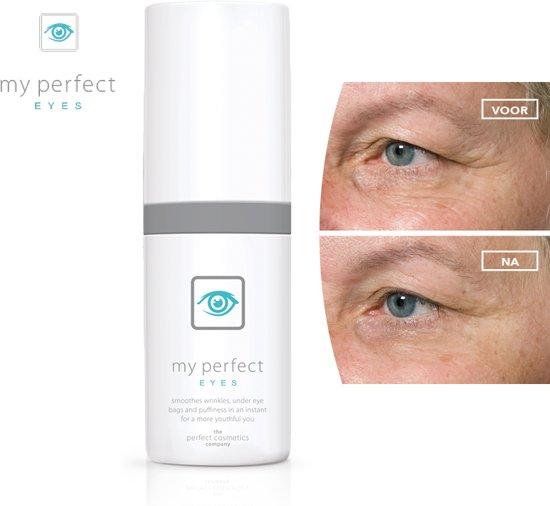 My perfect Eyes oogverzorging  verminderd wallen, donkere kringen en rimpels rondom de ogen