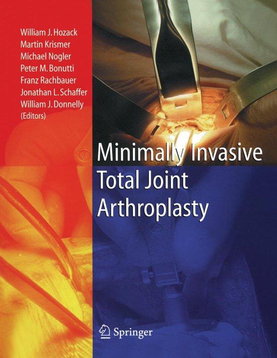 Minimally Invasive Total Joint Arthroplasty