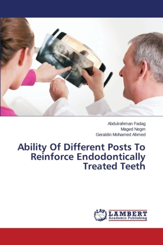Ability of Different Posts to Reinforce Endodontically Treated Teeth