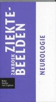 Zakboek ziektebeelden Neurologie
