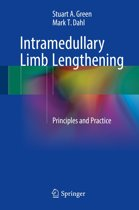Intramedullary Limb Lengthening