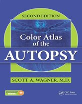 Color Atlas of the Autopsy