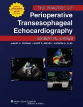 The Practice of Perioperative Transesophageal Echocardiography