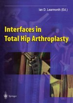 Interfaces in Total Hip Arthroplasty