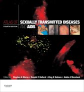 Atlas of Sexually Transmitted Diseases and AIDS