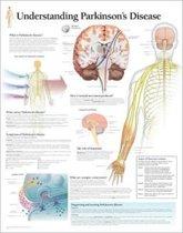 Understanding Parkinson's Paper Poster
