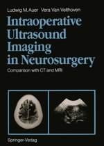 Intraoperative Ultrasound Imaging in Neurosurgery