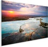 Zonsondergang over Pamukkale in Turkije Plexiglas 60x40 cm - Foto print op Glas (Plexiglas wanddecoratie)