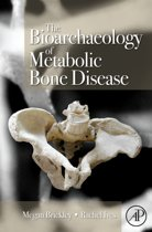 The Bioarchaeology of Metabolic Bone Disease