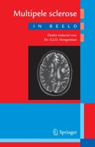 Multipele sclerose in beeld