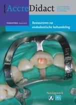 Restaureren na endodontische behandeling