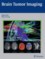 Brain Tumor Imaging