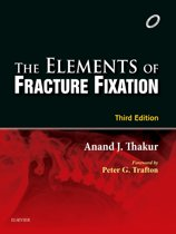 Elements of Fracture Fixation - E-book