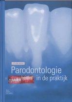 Parodontologie in de Praktijk