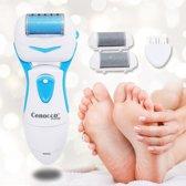 Cenocco Beauty Eeltverwijderaar Wet&Dry Elektronisch– CC-9019 – 360 ° Rotatie Voor Zijdezachte Voeten – Waterproof