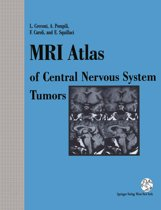 MRI Atlas of Central Nervous System Tumors