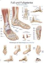 Het menselijk lichaam - anatomie poster voet en voetaandoeningen (Duits/Engels/Latijn, papier, 50x70 cm)  + ophangsysteem