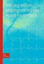 Het ecg en het angiogram bij een acuut hartinfarct
