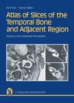 bol.com | Temporal Bone CT and MRI Anatomy (ebook), Jan Zizka ...