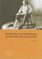 Amputatie en prothesiologie van de onderste extremiteit
