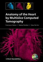 Anatomy of the Heart by Multislice Computed Tomography