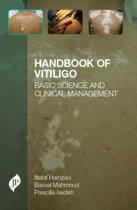 Handbook of Vitiligo