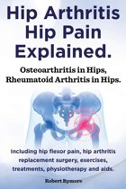 Hip Arthritis, Hip Pain Explained. Osteoarthritis in Hips, Rheumatoid Arthritis in Hips. Including Hip Arthritis Surgery, Hip Flexor Pain, Exercises,